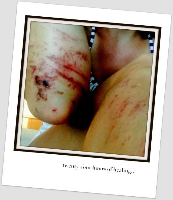 Bike Bruises